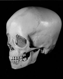[image of skull]